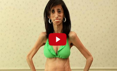 """They Called Her """"The World's Ugliest Girl"""" & Her Response is Unbelievably Beautiful. I literally cried."""